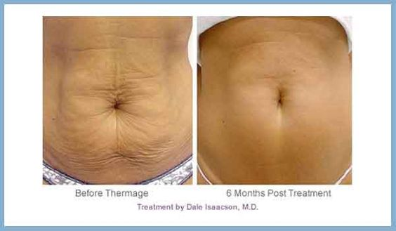 Monopolar Radiofrequency Tummy