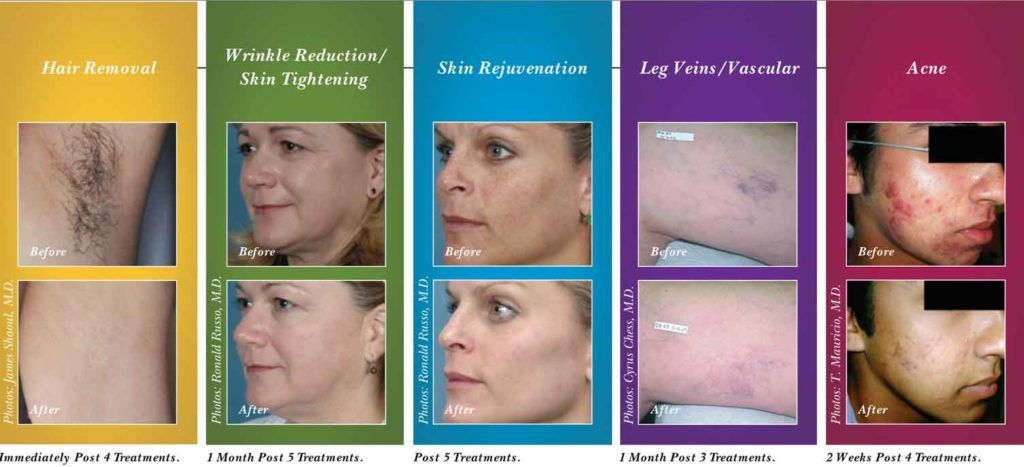 Emax syneron results